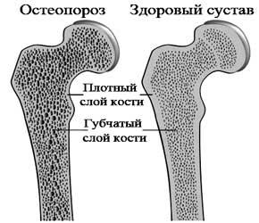 osteoporoz diagnoz